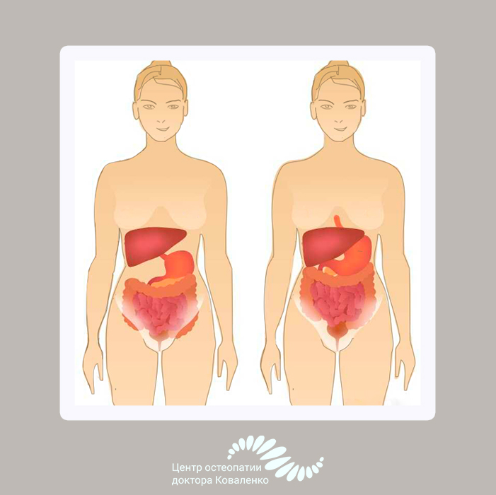 Опущение органов малого таза и лечение самара